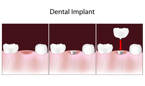 Dental Implants in Concord MA
